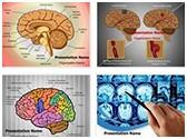 Human Brain PowerPoint Templates Bundle, TheTemplateWizard