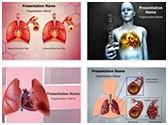 Lung Cancer PowerPoint Templates Bundle, TheTemplateWizard