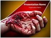 Wound PowerPoint Template, TheTemplateWizard